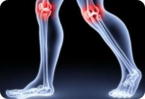 Jak rozpoznać reumatyzm?