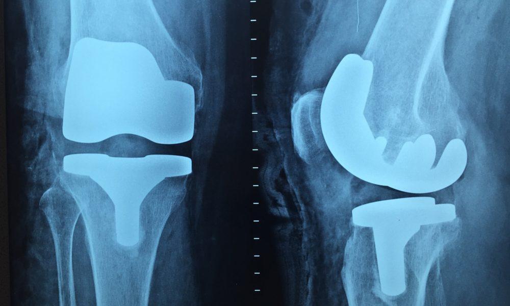 Artroskopia kolana – zabieg konieczny.