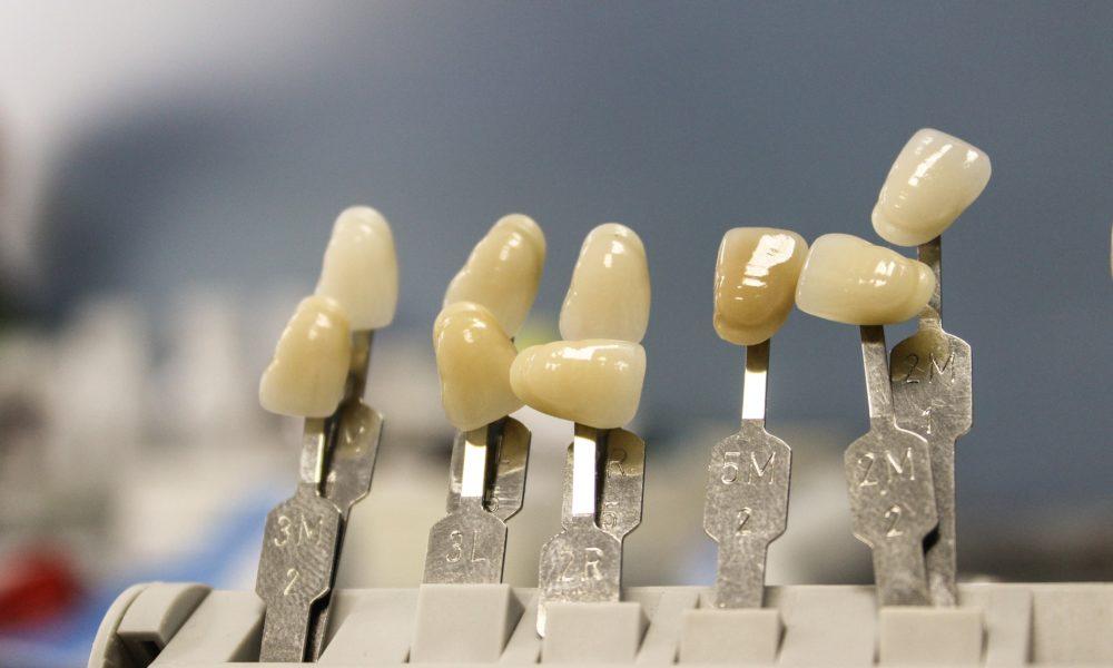 Śliczne nienaganne zęby oraz doskonały prześliczny uśmieszek to powód do zadowolenia.